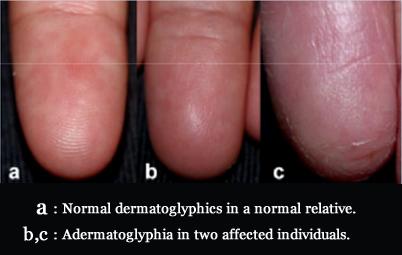 ADERMATOGLYPHIA - Inborn missing fingerprints is caused by a genetic defect! Adermatoglyphia-no-fingerprints
