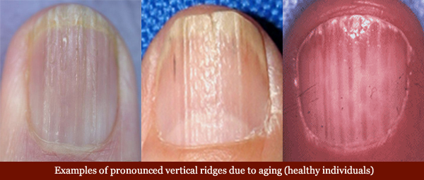 Vertical ridges in fingernails: causes, aging & health related variations! Vertical-ridges-fingernails-aging