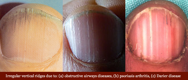 Vertical ridges in fingernails: causes, aging & health related variations! Vertical-ridges-fingernails-diseases