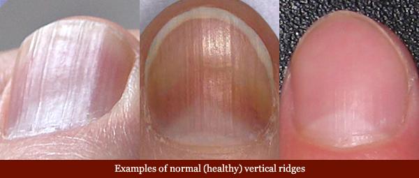 Vertical ridges in fingernails: causes, aging & health related variations! Vertical-ridges-fingernails-normal
