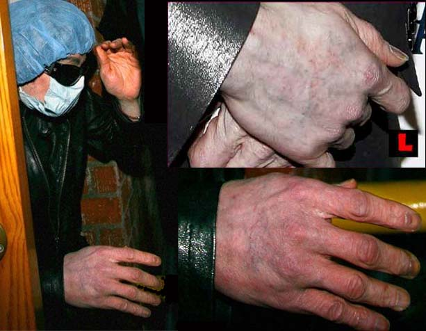 Not a hoax pic thread, but one I didn't wanna bring up... questions.. help :( Michael-jackson-hands-manicure-nightmare