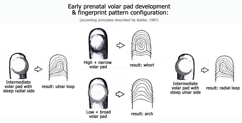 Radial loop fingerprints: what are the facts? Volar-pad-shape-fingerprint-configuration