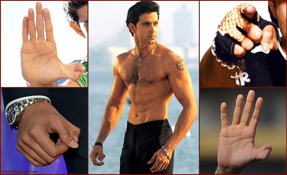 HRITHIK ROSHAN'S HANDS - About the double thumb of his right hand, now at Madame Tussauds! Hrithik-roshan-thumbs-polydactyly-syndactyly