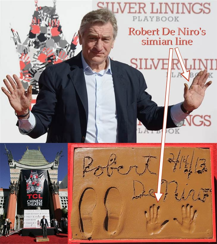 FAMOUS SIMIAN LINES - Which famous persons have a 'simian line'? Robert-de-niro-simian-line-in-left-hand