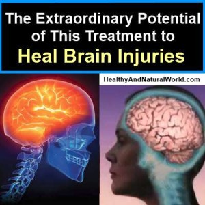 The Extraordinary Potential of This Treatment to Heal Brain Injuries Post1752-300x300