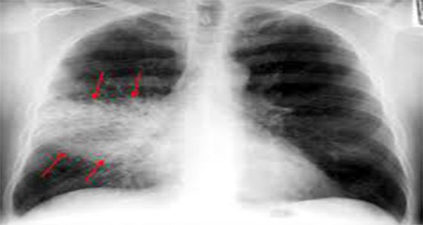 This Is How To Cure Pneumonia Naturally In Only 3 Hours! This-Is-How-To-Cure-Pneumonia-Naturally-In-Only-3-Hours