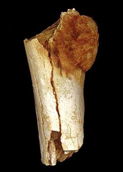 Un cancer enfin diagnostiqué 1,7 millions d'années après Cancer-os-swartkrans-paleolithique