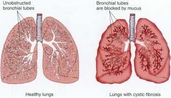 Cystic fibrosis Hdc_0001_0001_0_img0072