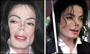Michael Jackson e la Chirurgia Plastica - Pagina 27 Mj_2001-2002