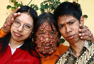الرجل الفقاعة  Diseases_bg011