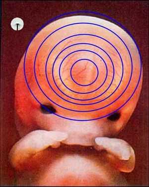 قول النبي صلى الله عليه وسلم : إذا مرَّ بالنطفة اثنتان وأربعون ليلة Embryo_human_005
