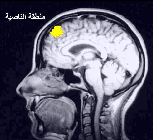 ( الصدق)............ FMRI_frontal_brain02