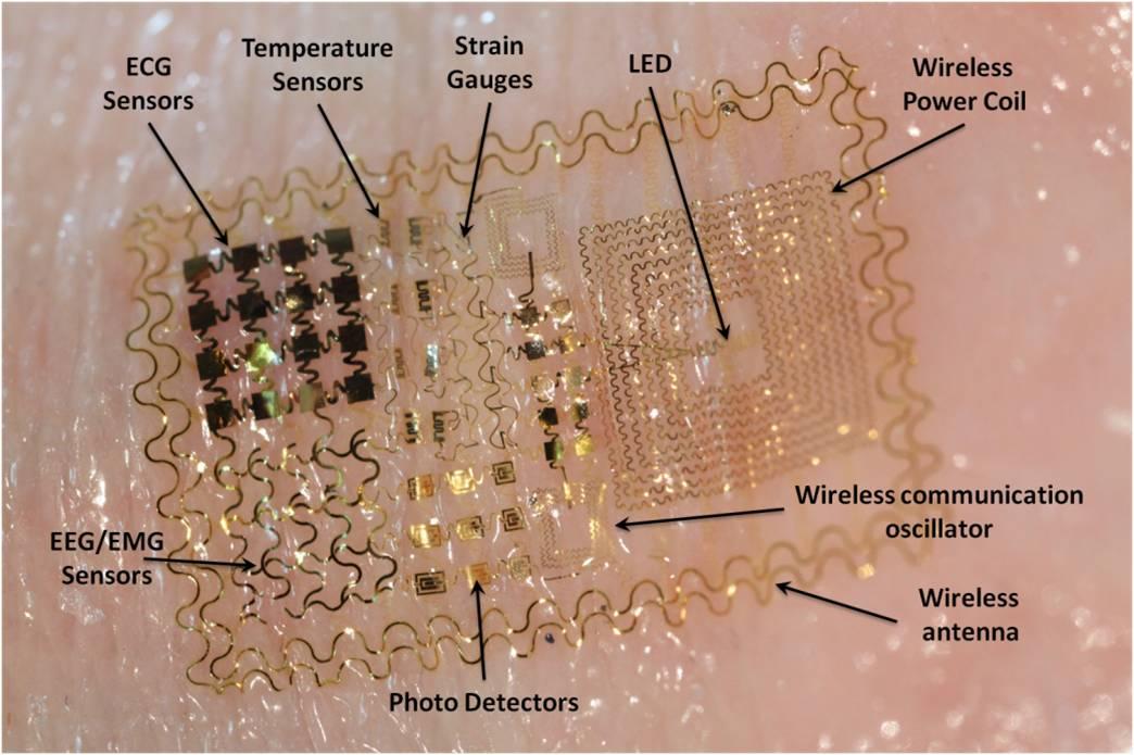 """Les puces RFID implantées sont de plus en plus vues comme """"cool"""", """"branchées"""" (sic) Coleman_ucsd_e_tattoo"""