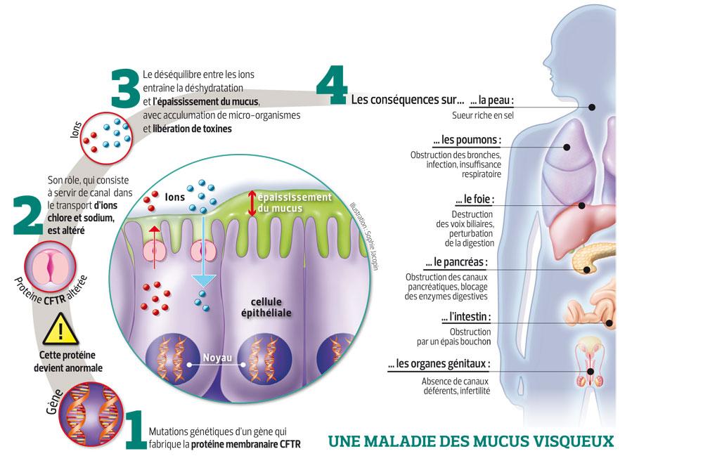 relation cl et mucoviscidose SANTE-201116-Mucoviscidose-KARIM-grande