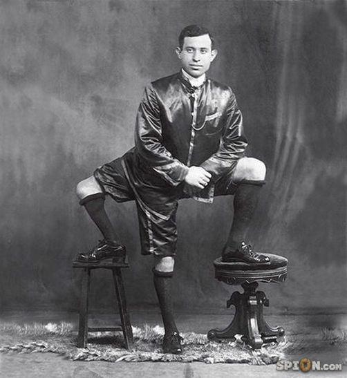 Complot Pokélluminati Francesco-lentini-malformation-3-jambes-deux-tete-humaine