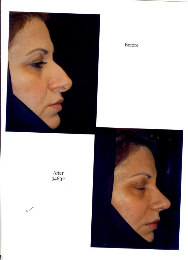 تجربة رائعة مع الدكتور بشار البزرة للأنف والأجفان 070911030715wa3yvkl9d2mcfve