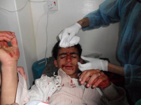 الى من لدية ضمير في اليمن ... هناك مأساة حقيقه في جامعه صنعاء .. والاعلام يضللكم ... اتقوا الله 15555552