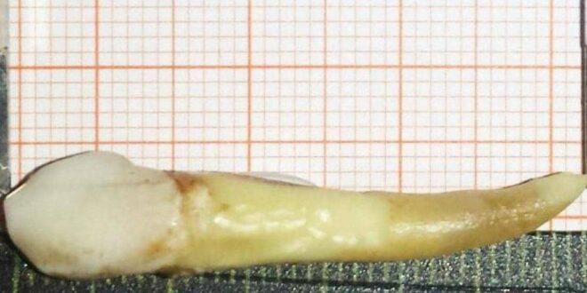 """موسوعة جينيس تكشف عن """"صوره أطول سن بشري في العالم"""".. كم طوله؟ 1-1294676-660x330"""