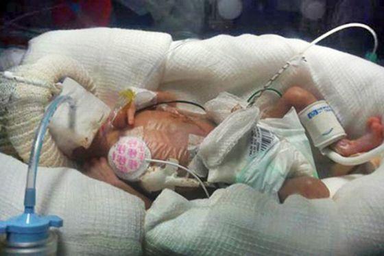أصغر مولودة بالعالم وزنها 340 جرامًا وطولها 27 سم سبحان الله 1