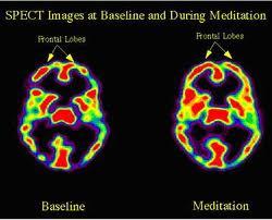 Des effets de la méditation sur le cerveau et l'organisme Cerveau-m%C3%A9ditants