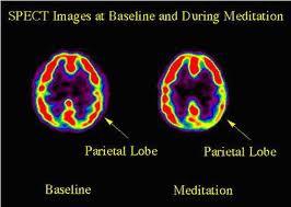 Des effets de la méditation sur le cerveau et l'organisme Cerveau