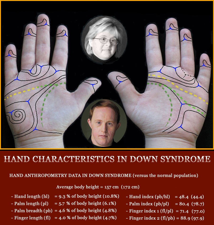 DOWN SYNDROME - The language of the hands! Down-syndrome-hands-phantom-picture
