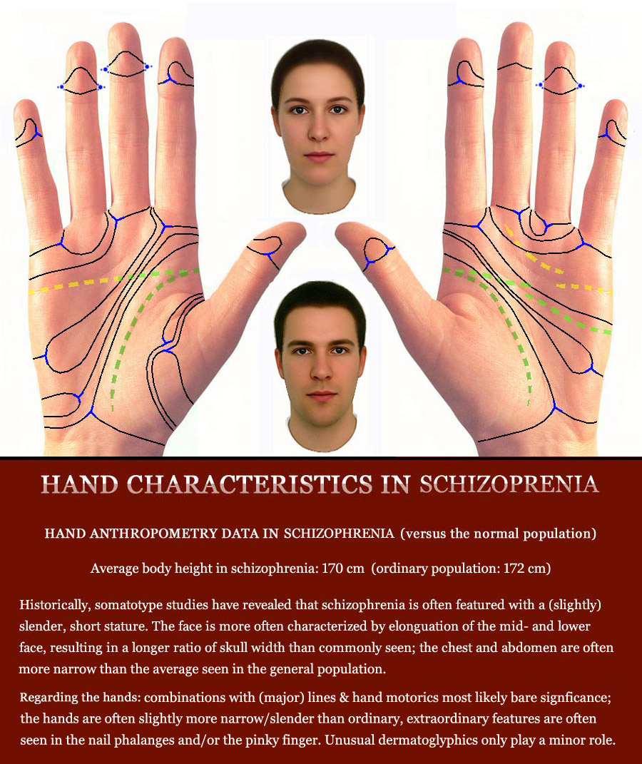 SCHIZOPHRENIA - The language of the hands! Schizophrenia-hands-phantom-picture