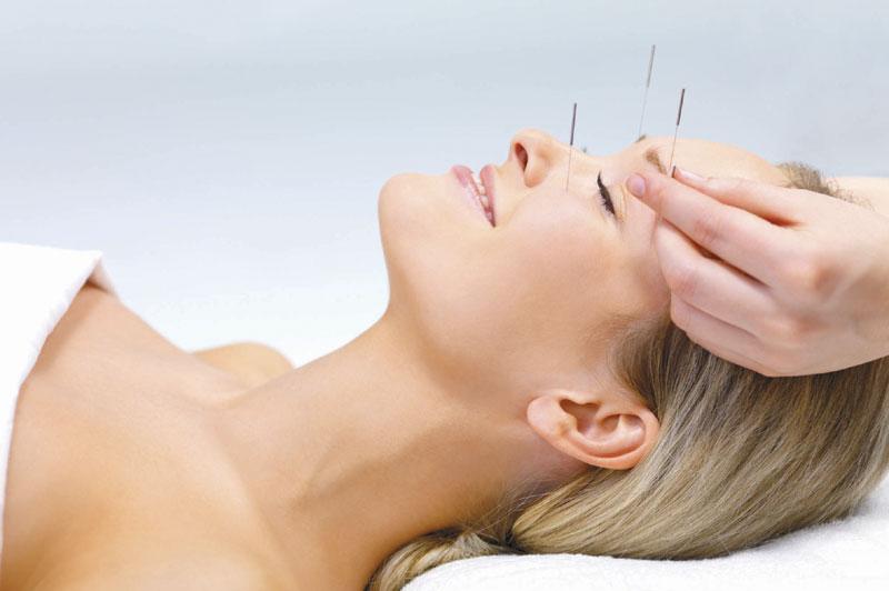 Vježbama do zdravlja i lijepog izgleda Akupunktura