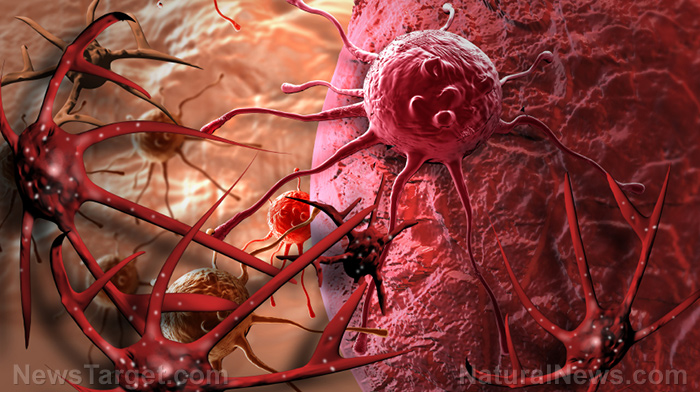 Medical BOMBSHELL: Chemotherapy found to spread cancer Cancer-Cell-Tumor