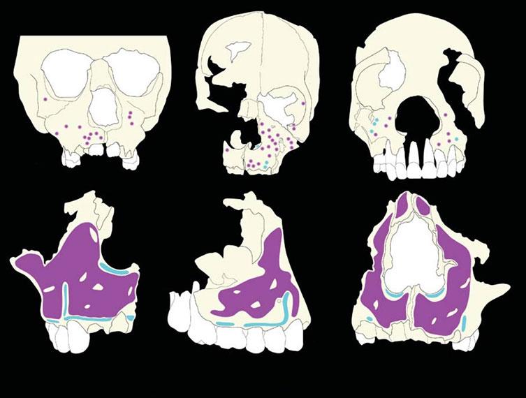 Explication de la forme particulière du visage de Néandertal Neanderthal-face-growth-scans-two-column