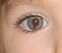 Why have the McCanns lied about Maddie's coloboma for 4 years? Madeleine2