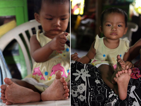 Girl from Myanmar (Burma) has 12 Fingers + 14 toes... a brand new Guinness World Record! 1935042215-birma_dpa.9