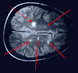 Multiple sclerosis is Lyme disease: Anatomy of a cover-up Lyme-Multiple-sclerosis