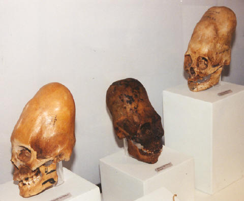 HIDDEN HISTORY: 1800-1905_OLD NEWSPAPERS PROVE_ GIANTS IN THE USA!!! Skullsdeformation_ica_museum