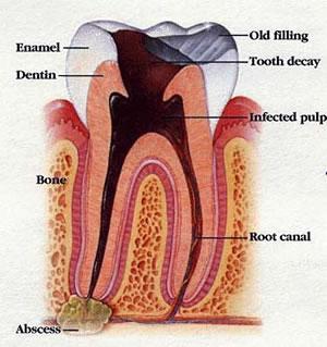 عکسهای دندان 45645645641