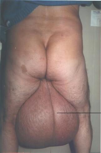 Encargo raro... Elefantiasis_testicular_escroto_2