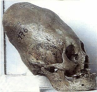 An evolved human? ConeheadSkull2