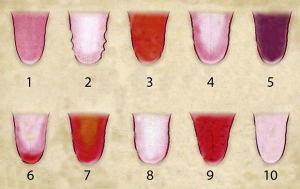 Comment la couleur de votre langue révèle votre santé Couleur-langue-sante
