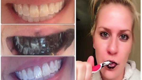 Comment blanchir vos dents naturellement Guaranteed-teeth-whitening-within-a-week