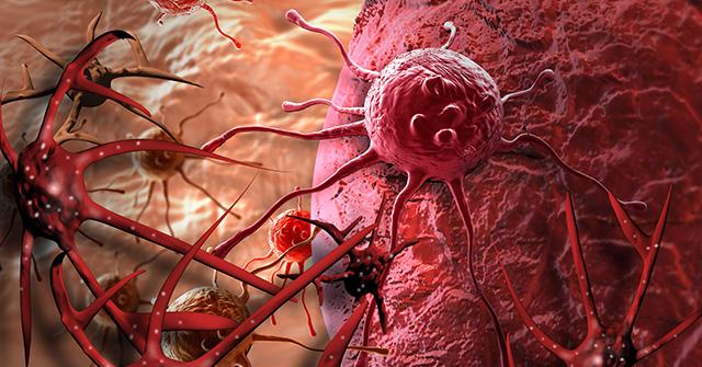 L'épidémie de grippe - Page 4 Cancer-infections-fongiques