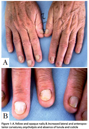 YELLOW NAILS? - Always check other nail features of the hand, like: the cuticles & lunula! En_6a11fig01