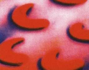 موسوعة أمراض الدم Blood Disorders SickleRBC