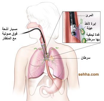 السرطان بانواعه cancer Gastric-cancer12