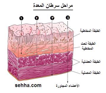 السرطان بانواعه cancer Gastric-cancer15
