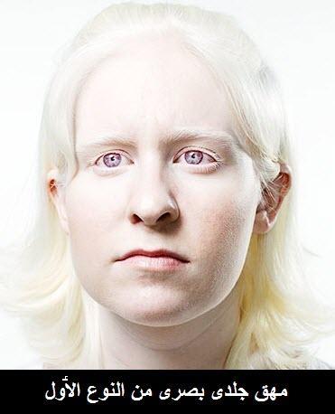 المهق(البرص)...albenism Albinism01