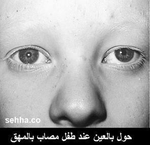 المهق(البرص)...albenism Albinism09
