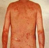 موسوعة الأمراض الجلديه .. بالصور  - صفحة 2 Psoriasis3