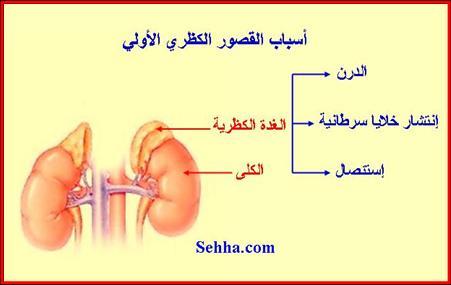 أمراض الغدد الصم Endocrine disorders Addison06