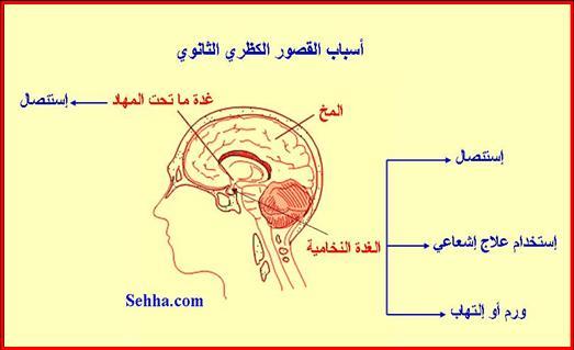 أمراض الغدد الصم Endocrine disorders Addison07
