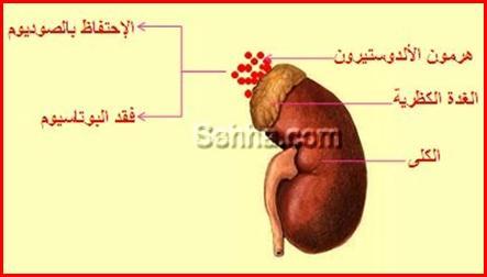 أمراض الغدد الصم Endocrine disorders Aldosteronism03